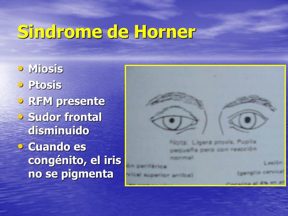 Sindrome de Horner Miosis Miosis Ptosis Ptosis RFM presente RFM presente Sudor frontal disminuido Sudor frontal disminuido Cuando es congénito, el iri