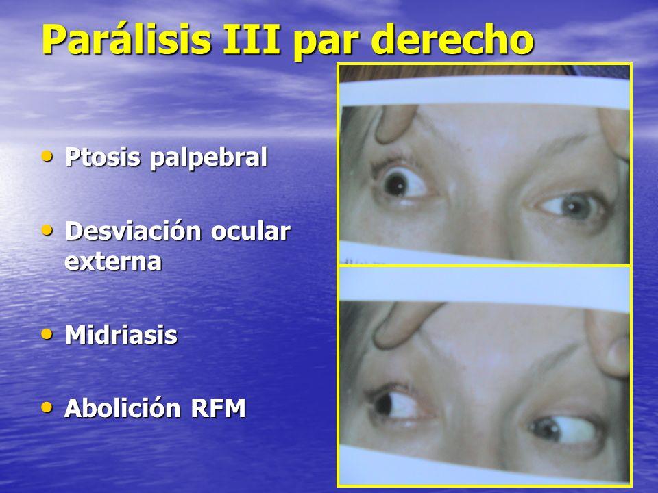 Parálisis III par derecho Ptosis palpebral Ptosis palpebral Desviación ocular externa Desviación ocular externa Midriasis Midriasis Abolición RFM Abol
