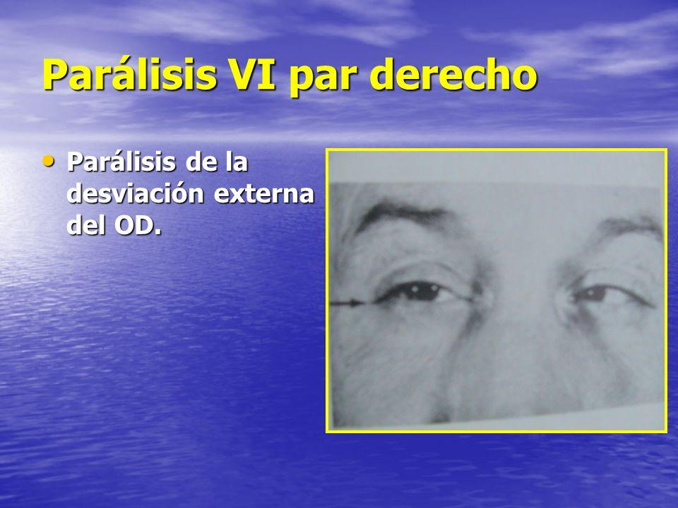 Parálisis VI par derecho Parálisis de la desviación externa del OD. Parálisis de la desviación externa del OD.