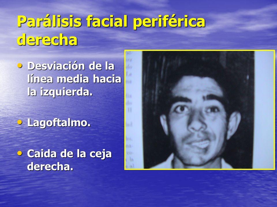 Parálisis facial periférica derecha Desviación de la línea media hacia la izquierda. Desviación de la línea media hacia la izquierda. Lagoftalmo. Lago