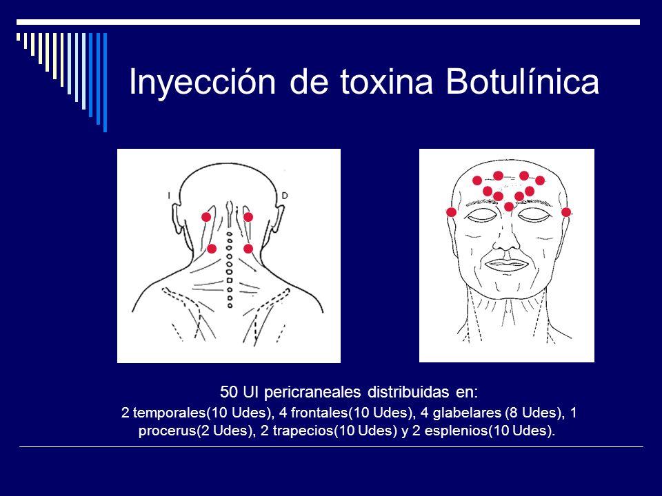 Inyección de toxina Botulínica 50 UI pericraneales distribuidas en: 2 temporales(10 Udes), 4 frontales(10 Udes), 4 glabelares (8 Udes), 1 procerus(2 U