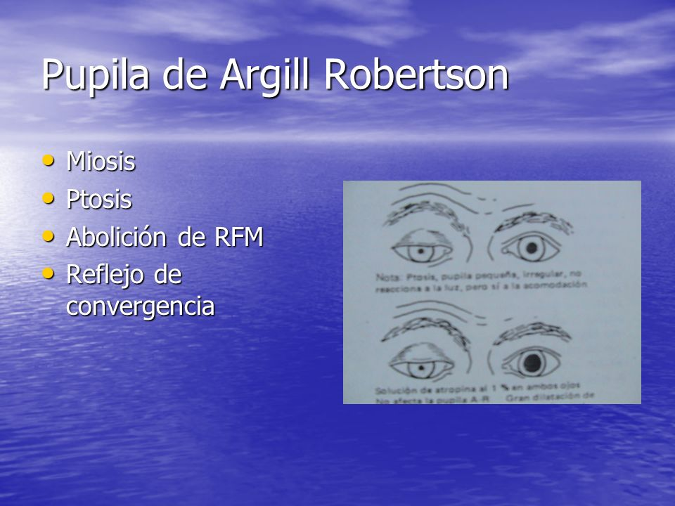 Pupila de Argill Robertson Miosis Miosis Ptosis Ptosis Abolición de RFM Abolición de RFM Reflejo de convergencia Reflejo de convergencia