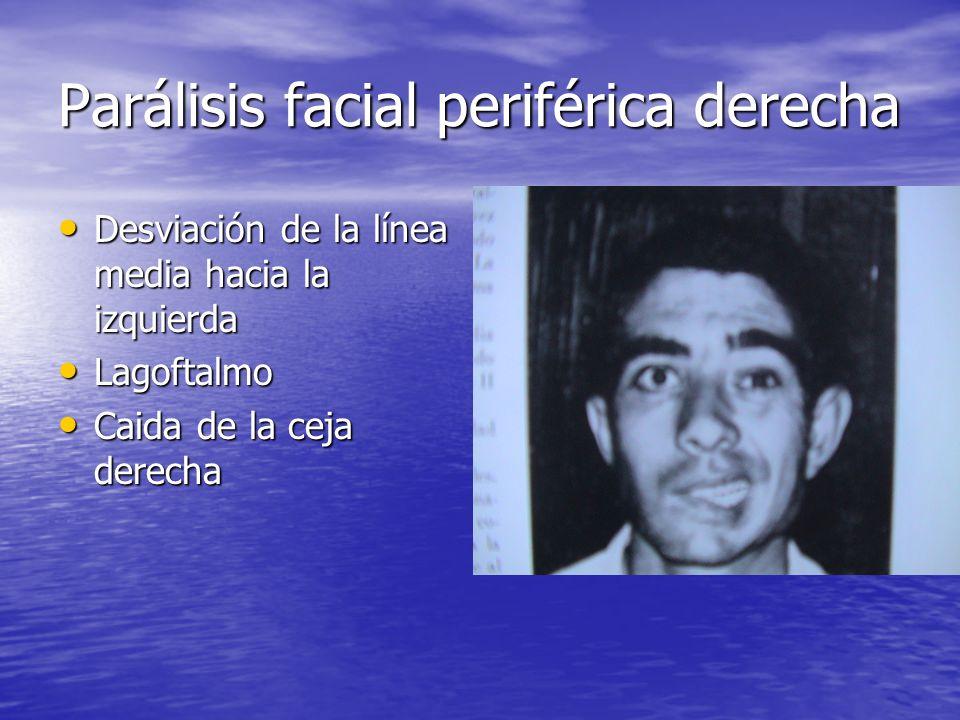 Parálisis facial periférica derecha Desviación de la línea media hacia la izquierda Desviación de la línea media hacia la izquierda Lagoftalmo Lagofta