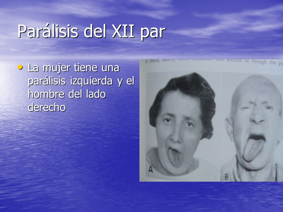Parálisis del XII par La mujer tiene una parálisis izquierda y el hombre del lado derecho La mujer tiene una parálisis izquierda y el hombre del lado