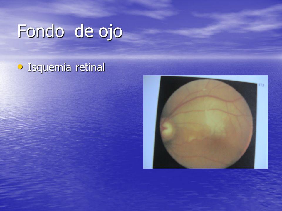 Fondo de ojo Isquemia retinal Isquemia retinal