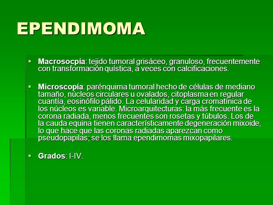 EPENDIMOMA Macrosocpía: tejido tumoral grisáceo, granuloso, frecuentemente con transformación quística, a veces con calcificaciones. Macrosocpía: teji