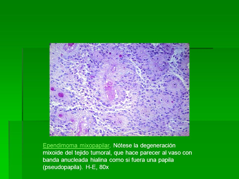 Ependimoma mixopapilarEpendimoma mixopapilar. Nótese la degeneración mixoide del tejido tumoral, que hace parecer al vaso con banda anucleada hialina
