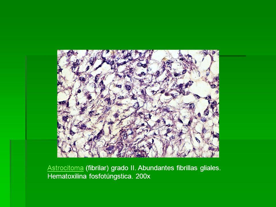 AstrocitomaAstrocitoma (fibrilar) grado II. Abundantes fibrillas gliales. Hematoxilina fosfotúngstica. 200x