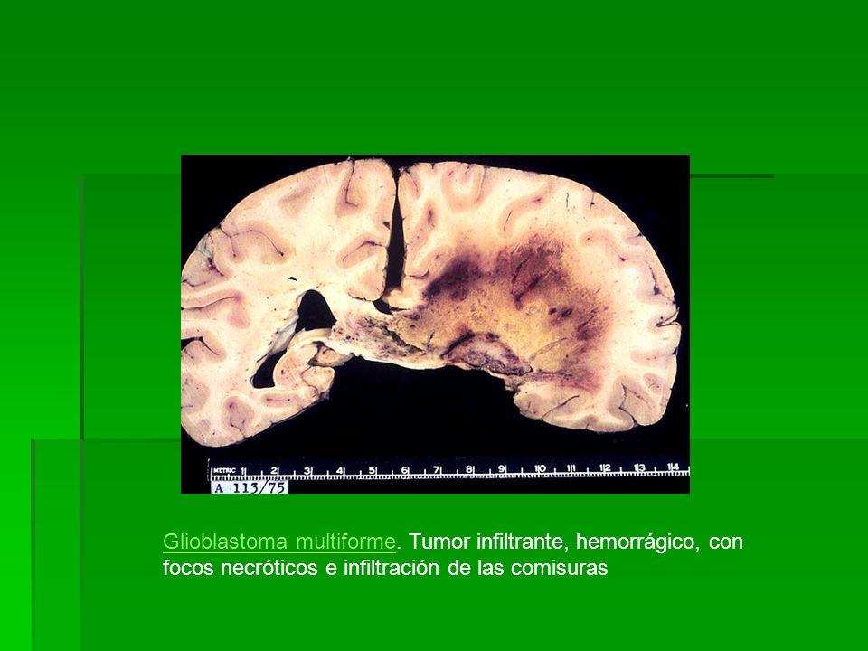 Glioblastoma multiformeGlioblastoma multiforme. Tumor infiltrante, hemorrágico, con focos necróticos e infiltración de las comisuras