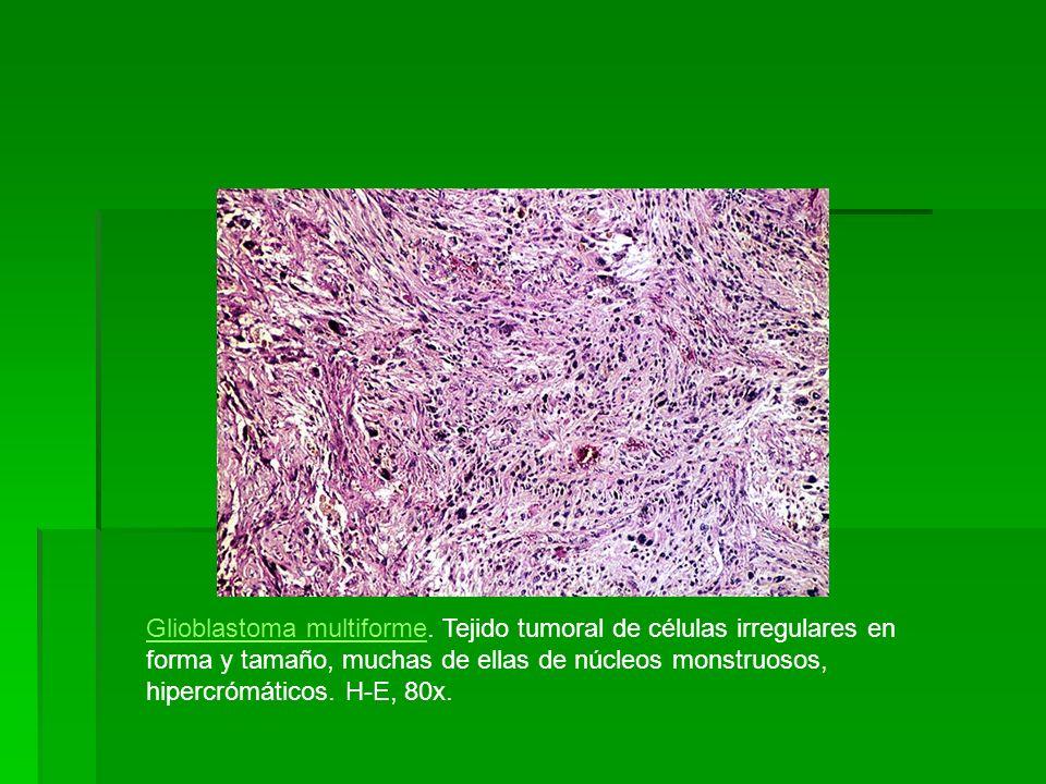 Glioblastoma multiformeGlioblastoma multiforme. Tejido tumoral de células irregulares en forma y tamaño, muchas de ellas de núcleos monstruosos, hiper