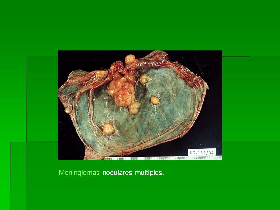 MeningiomasMeningiomas nodulares múltiples.