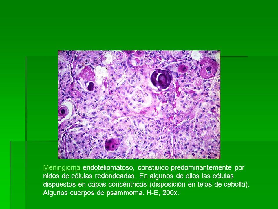MeningiomaMeningioma endoteliomatoso, constiuido predominantemente por nidos de células redondeadas. En algunos de ellos las células dispuestas en cap