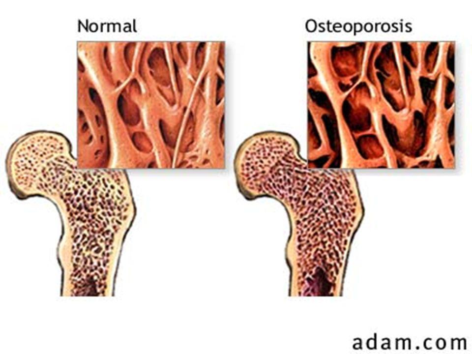 Efecto sobre el metabolismo óseo
