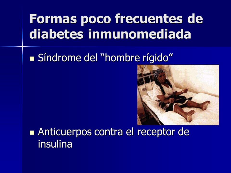 Formas poco frecuentes de diabetes inmunomediada Síndrome del hombre rígido Síndrome del hombre rígido Anticuerpos contra el receptor de insulina Anti