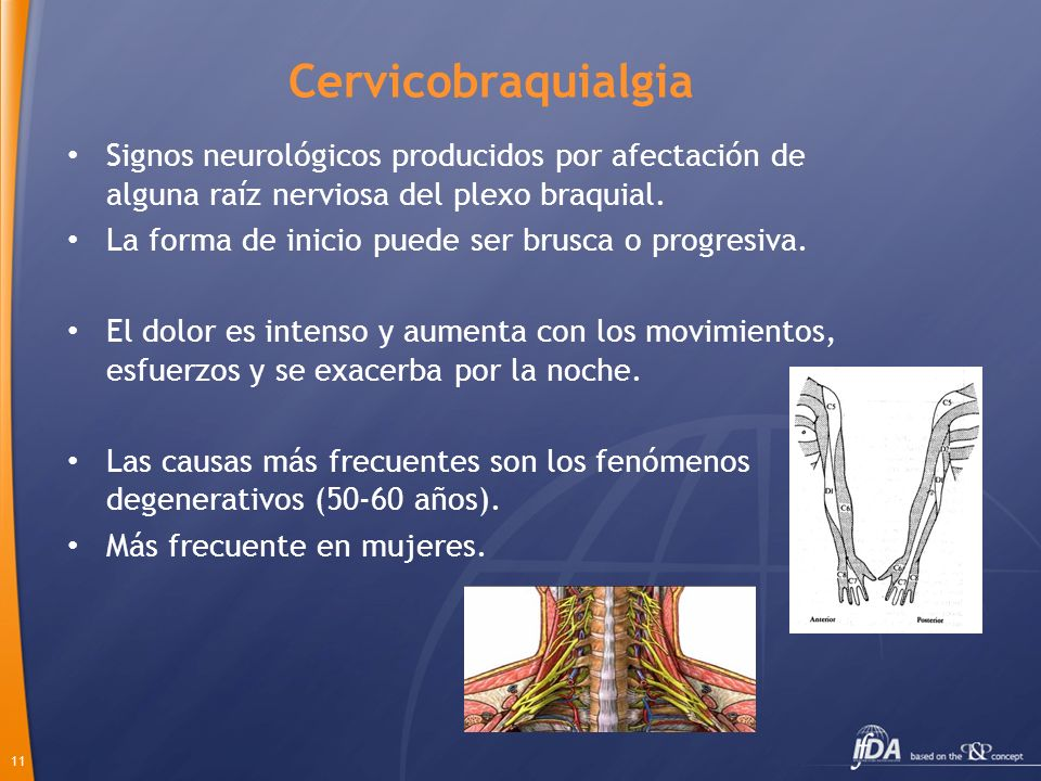 11 Cervicobraquialgia Signos neurológicos producidos por afectación de alguna raíz nerviosa del plexo braquial. La forma de inicio puede ser brusca o