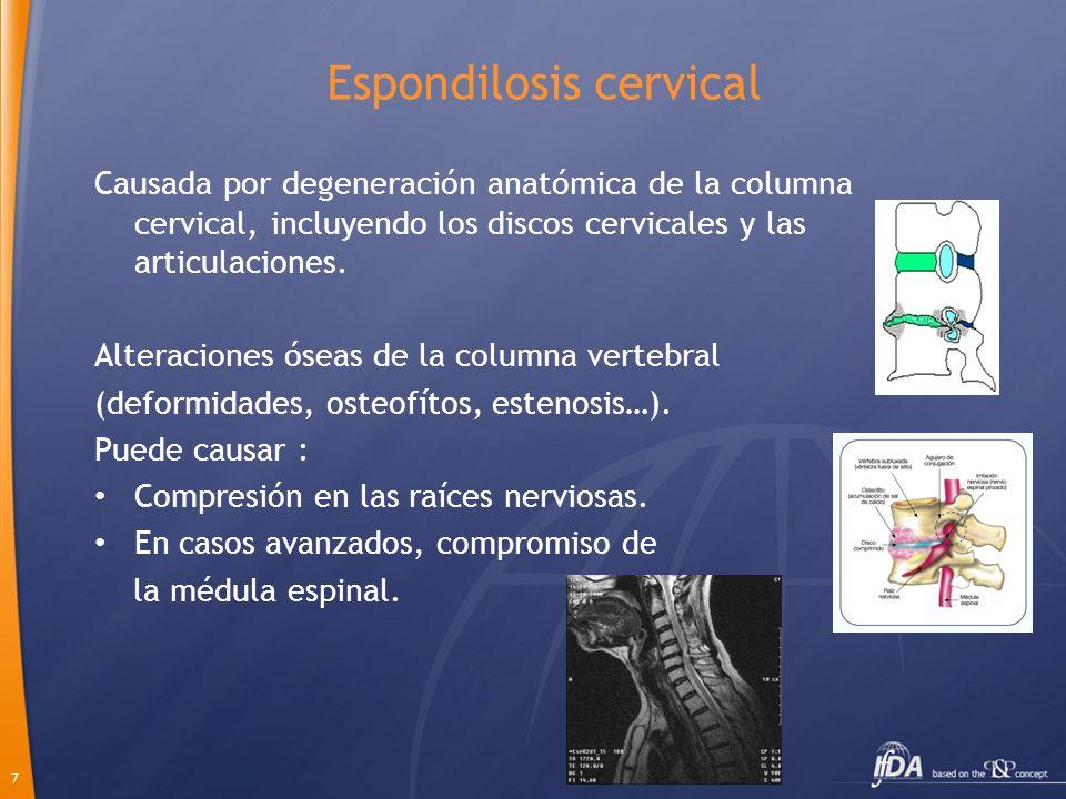 7 Espondilosis cervical Causada por degeneración anatómica de la columna cervical, incluyendo los discos cervicales y las articulaciones. Alteraciones