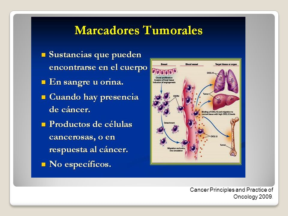 Cancer Principles and Practice of Oncology 2009.
