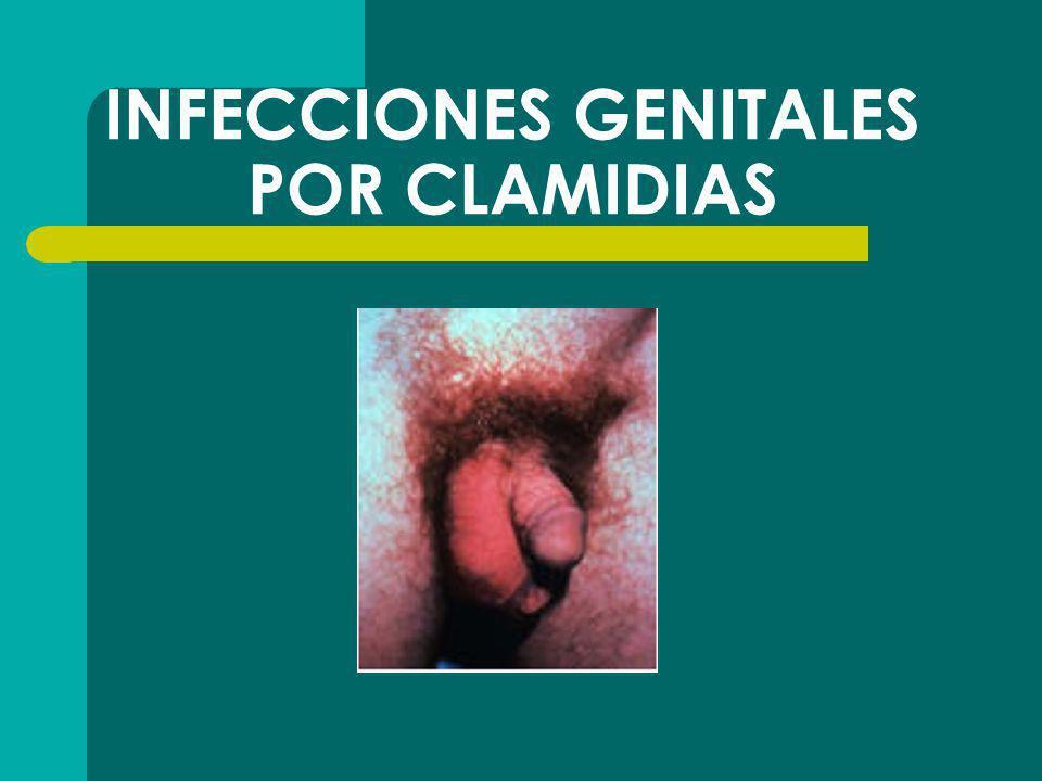 INFECCIONES GENITALES POR CLAMIDIAS
