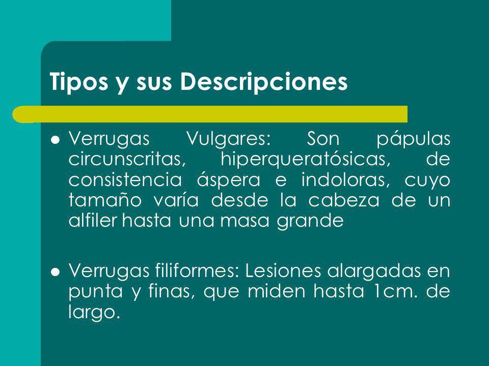 Tipos y sus Descripciones Verrugas Vulgares: Son pápulas circunscritas, hiperqueratósicas, de consistencia áspera e indoloras, cuyo tamaño varía desde
