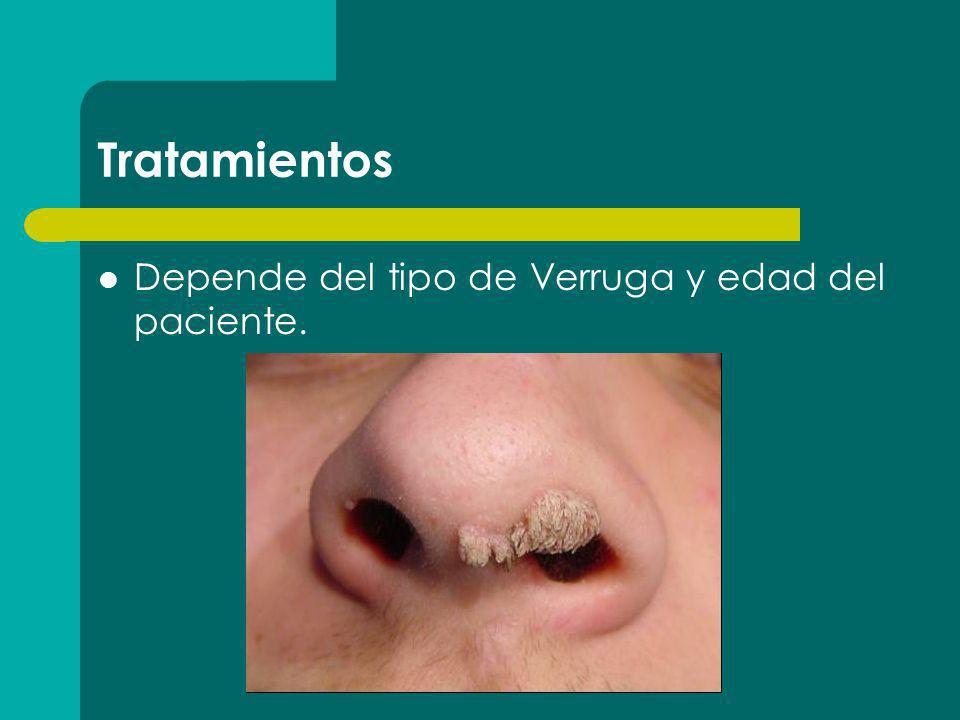 Tratamientos Depende del tipo de Verruga y edad del paciente.