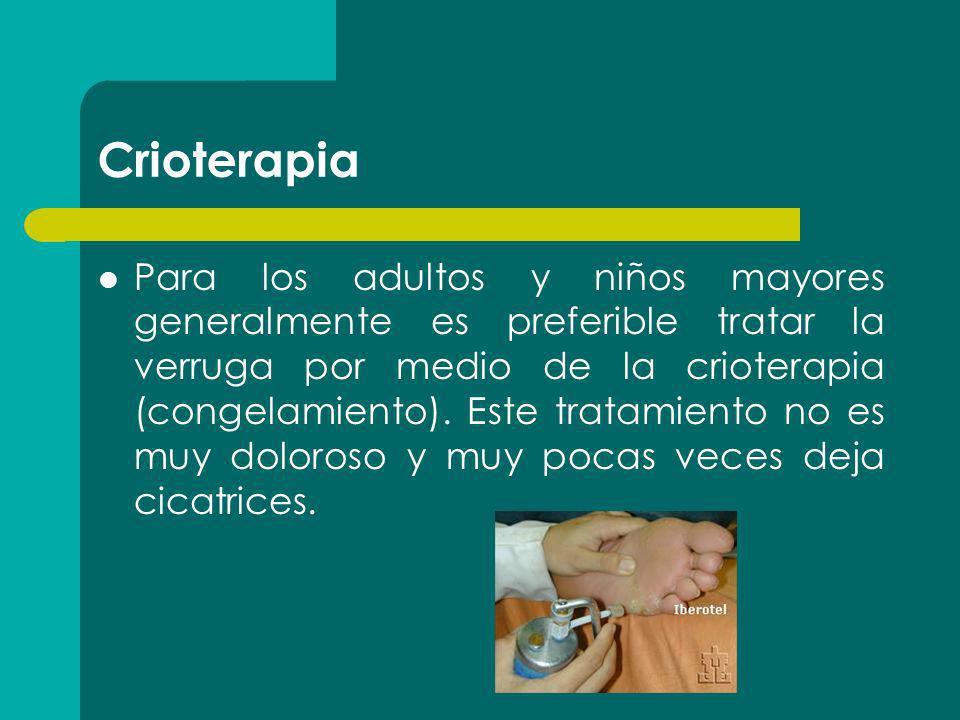 Crioterapia Para los adultos y niños mayores generalmente es preferible tratar la verruga por medio de la crioterapia (congelamiento). Este tratamient