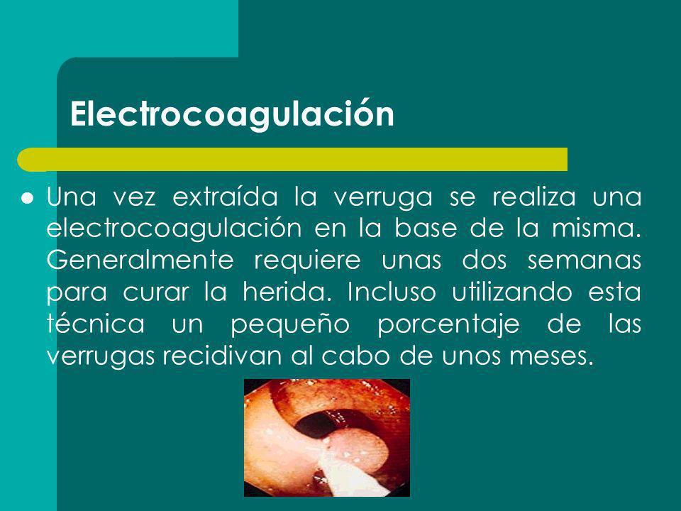 Electrocoagulación Una vez extraída la verruga se realiza una electrocoagulación en la base de la misma. Generalmente requiere unas dos semanas para c