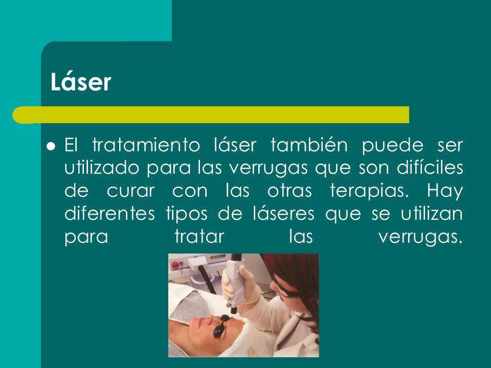 Láser El tratamiento láser también puede ser utilizado para las verrugas que son difíciles de curar con las otras terapias. Hay diferentes tipos de lá