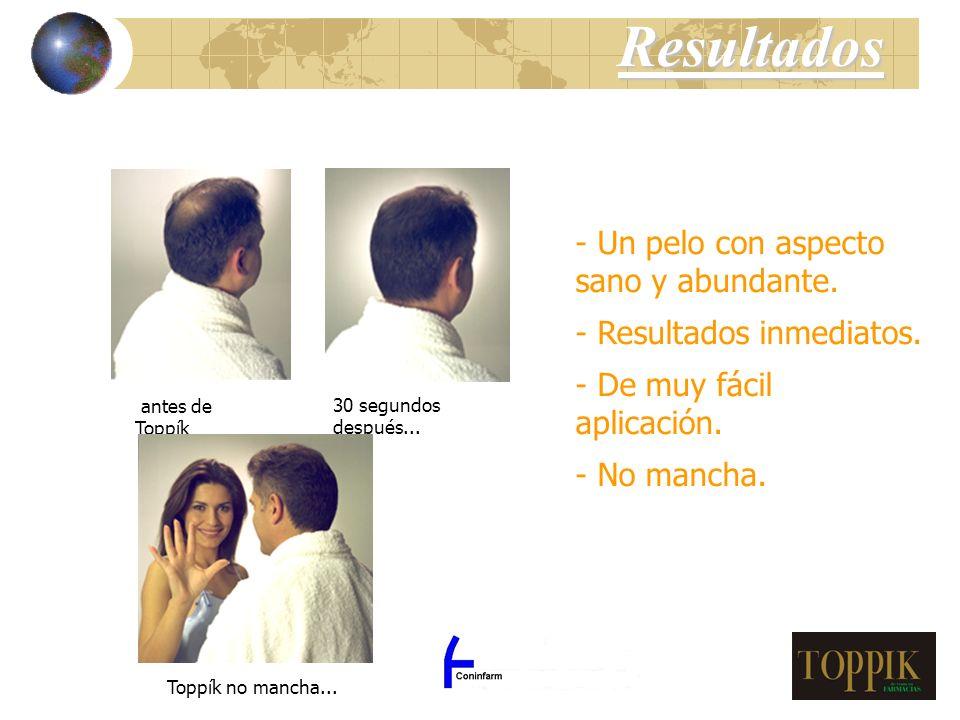 Los Españoles gastaron en el año 2000 más de 5.000 millones de pesetas (30 millones ) en productos para la caída del cabello vendidos en farmacias.