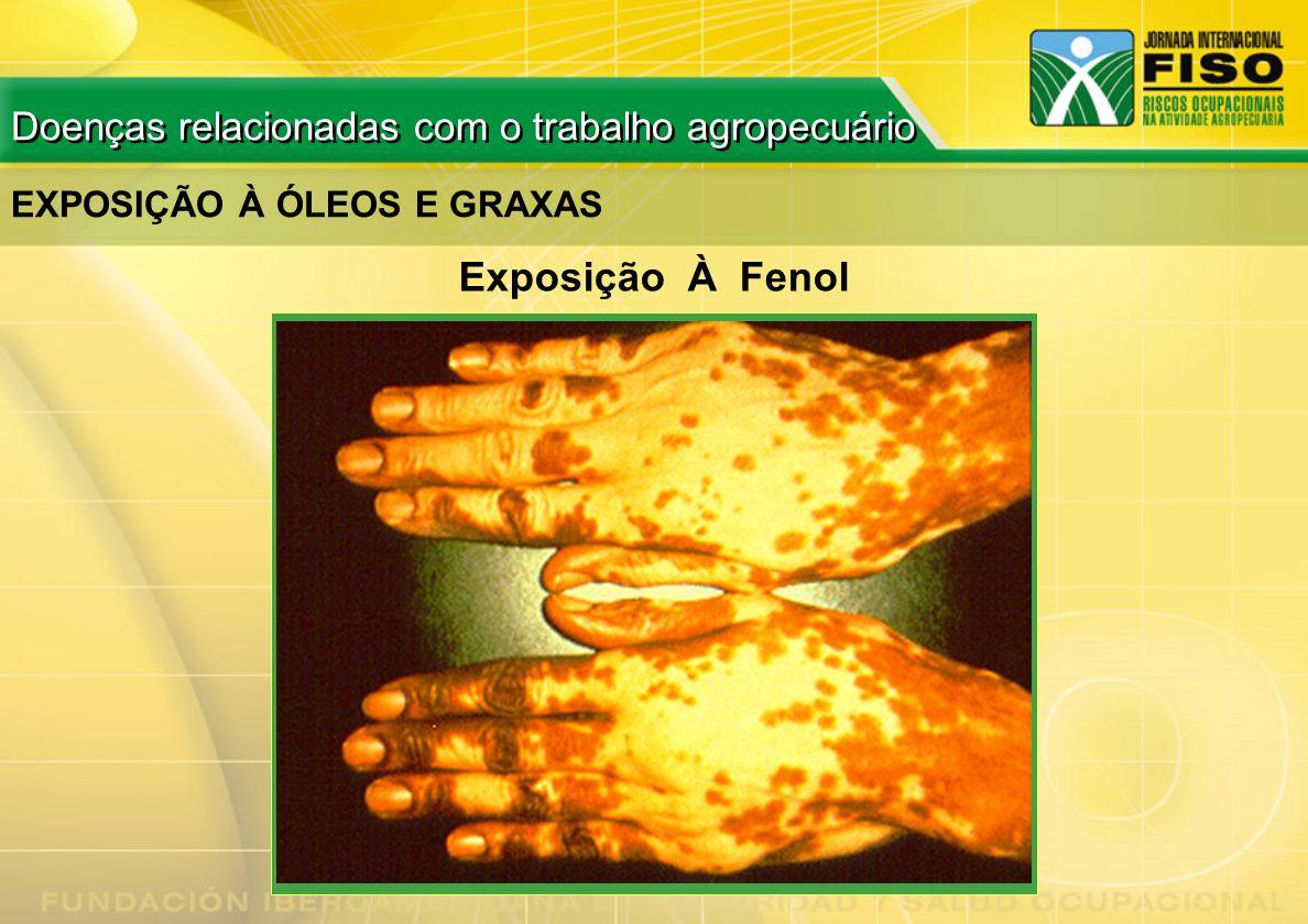 EXPOSIÇÃO À ÓLEOS E GRAXAS Exposição À Fenol Doenças relacionadas com o trabalho agropecuário