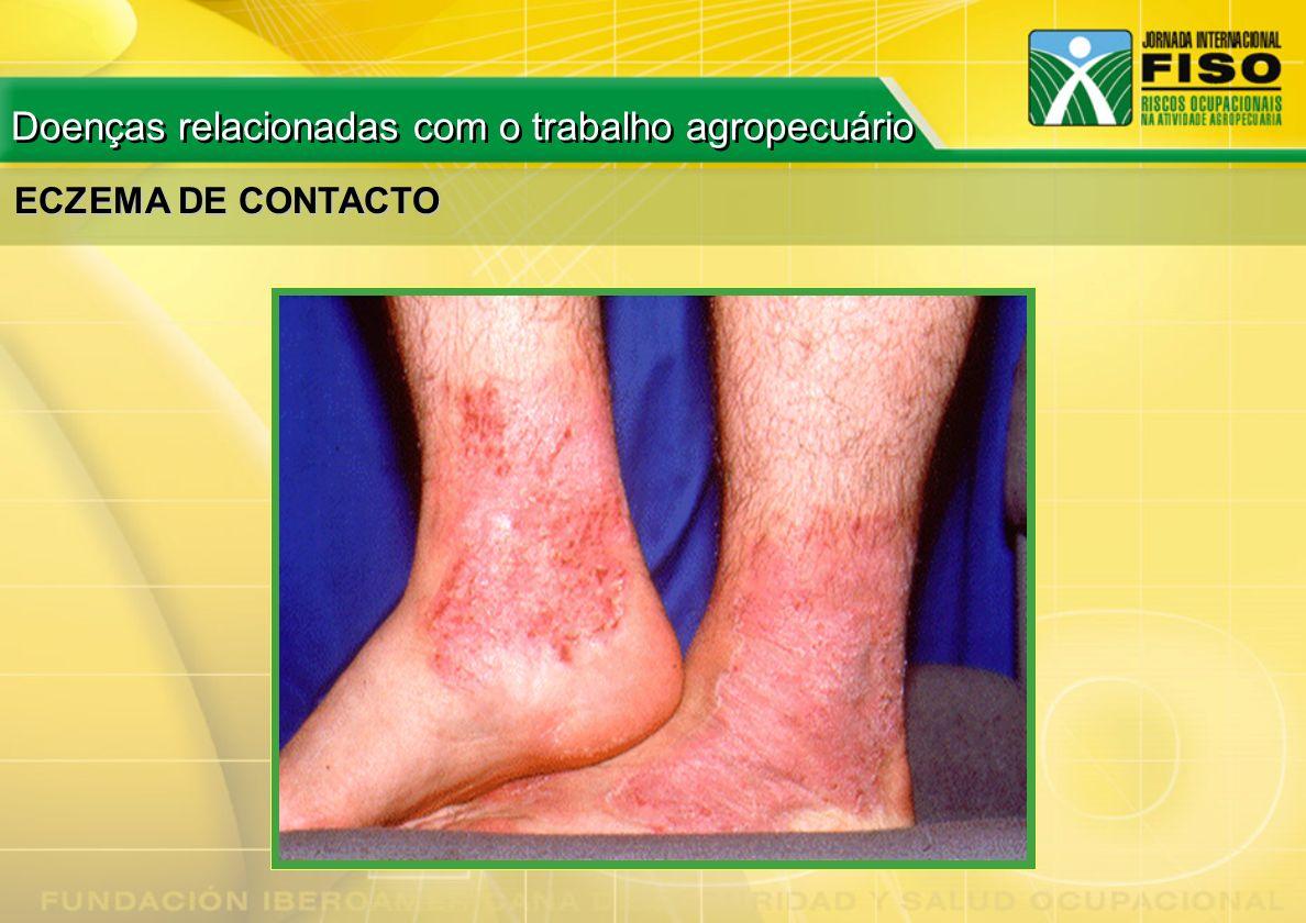 ECZEMA DE CONTACTO Doenças relacionadas com o trabalho agropecuário