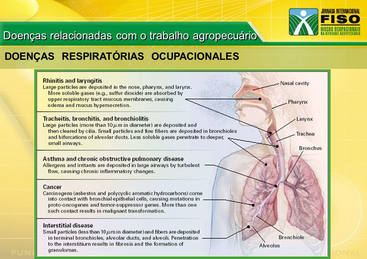 DOENÇAS RESPIRATÓRIAS OCUPACIONALES Doenças relacionadas com o trabalho agropecuário