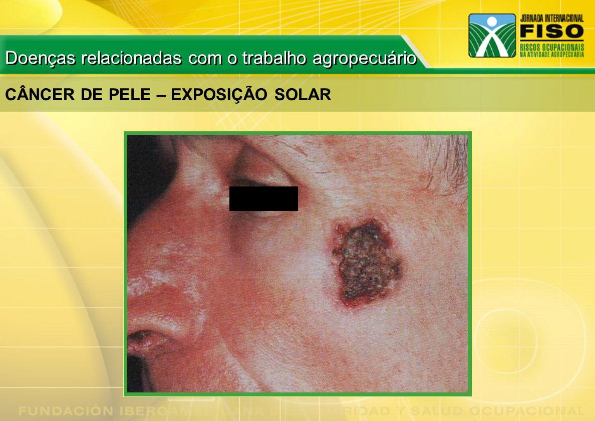 CÂNCER DE PELE – EXPOSIÇÃO SOLAR Doenças relacionadas com o trabalho agropecuário