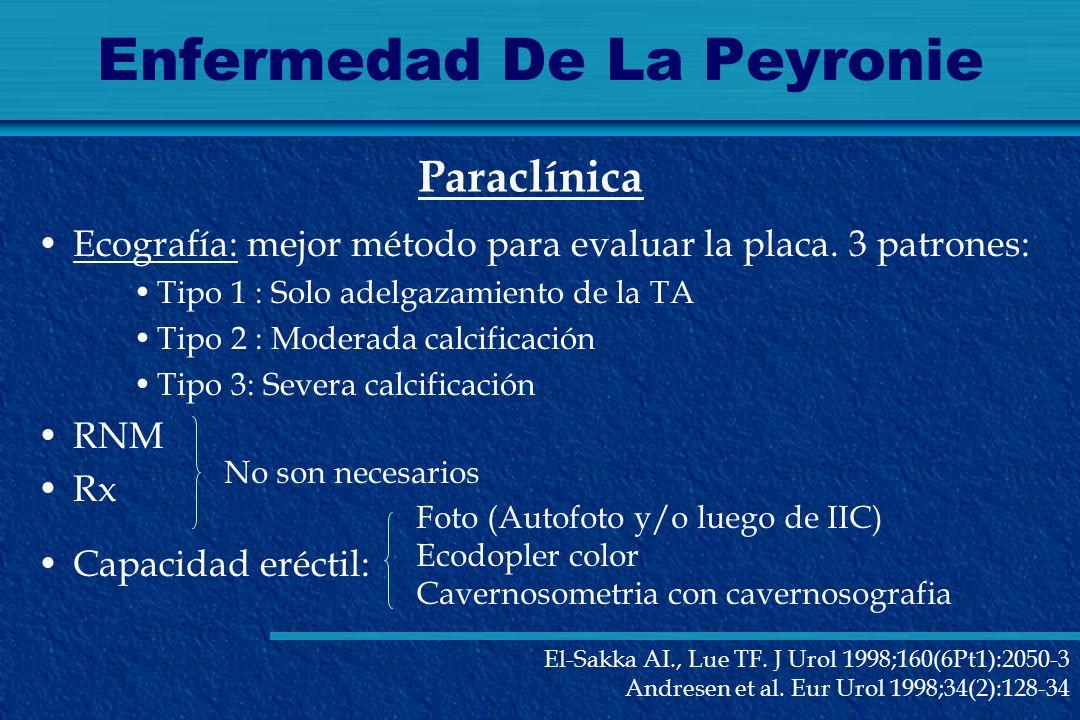 Enfermedad De La Peyronie Ecografía: mejor método para evaluar la placa. 3 patrones: Tipo 1 : Solo adelgazamiento de la TA Tipo 2 : Moderada calcifica