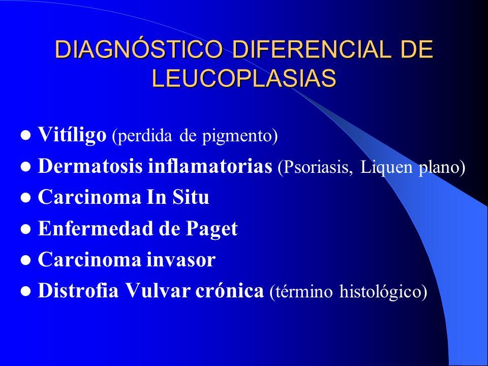 DIAGNÓSTICO DIFERENCIAL DE LEUCOPLASIAS Vitíligo (perdida de pigmento) Dermatosis inflamatorias (Psoriasis, Liquen plano) Carcinoma In Situ Enfermedad