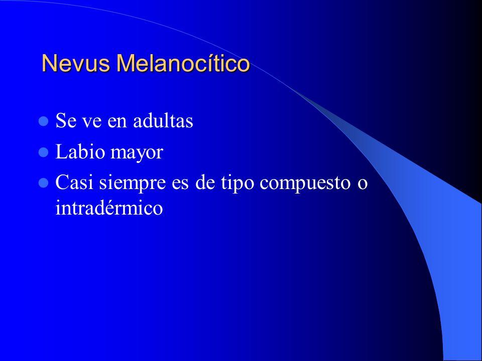 Nevus Melanocítico Se ve en adultas Labio mayor Casi siempre es de tipo compuesto o intradérmico