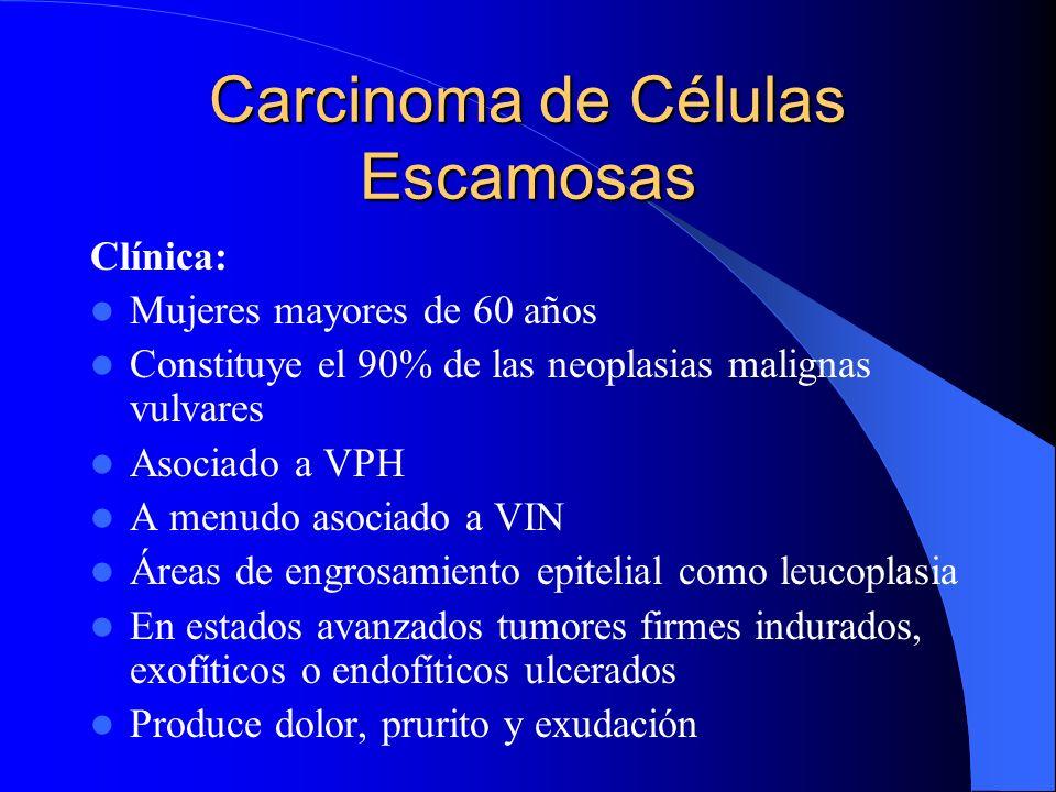 Carcinoma de Células Escamosas Clínica: Mujeres mayores de 60 años Constituye el 90% de las neoplasias malignas vulvares Asociado a VPH A menudo asoci