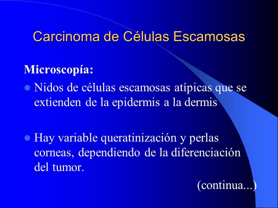 Carcinoma de Células Escamosas Microscopía: Nidos de células escamosas atípicas que se extienden de la epidermis a la dermis Hay variable queratinizac