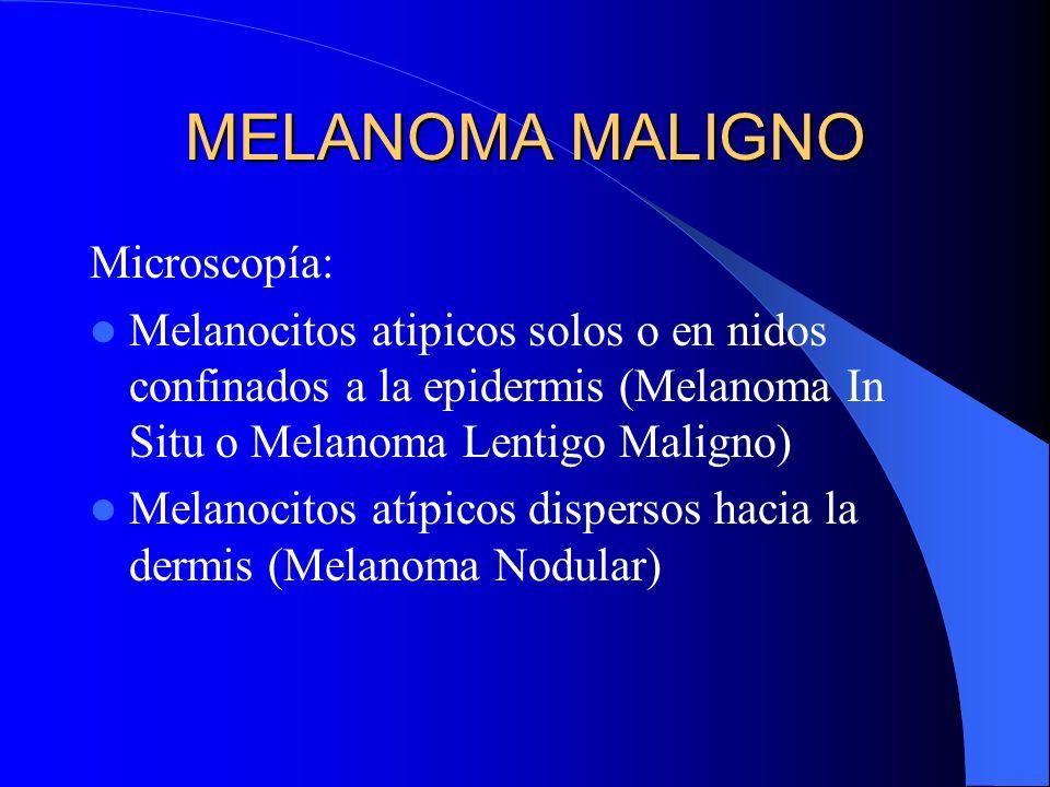 MELANOMA MALIGNO Microscopía: Melanocitos atipicos solos o en nidos confinados a la epidermis (Melanoma In Situ o Melanoma Lentigo Maligno) Melanocito