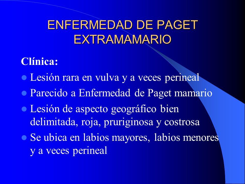 ENFERMEDAD DE PAGET EXTRAMAMARIO Clínica: Lesión rara en vulva y a veces perineal Parecido a Enfermedad de Paget mamario Lesión de aspecto geográfico