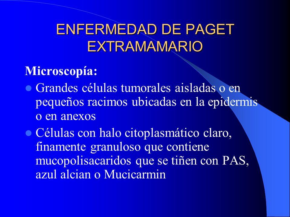 ENFERMEDAD DE PAGET EXTRAMAMARIO Microscopía: Grandes células tumorales aisladas o en pequeños racimos ubicadas en la epidermis o en anexos Células co