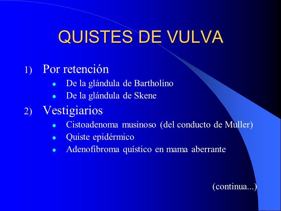 QUISTES DE VULVA 1) Por retención De la glándula de Bartholino De la glándula de Skene 2) Vestigiarios Cistoadenoma musinoso (del conducto de Muller)