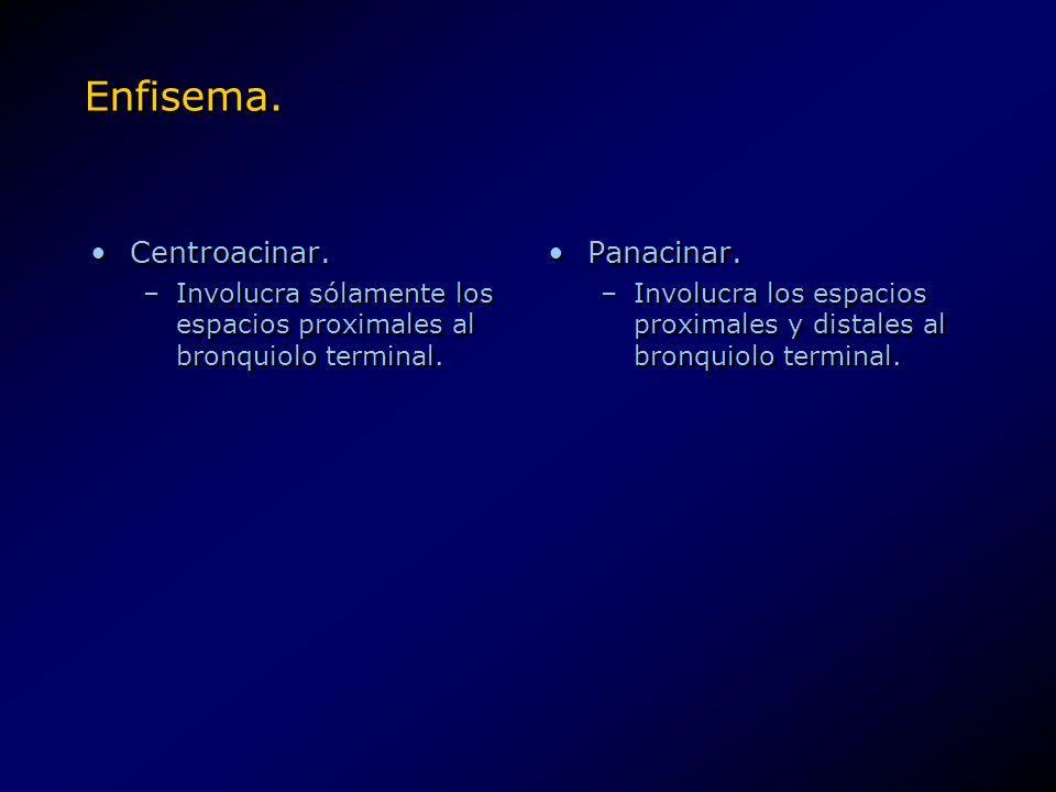 Enfisema. Centroacinar. –Involucra sólamente los espacios proximales al bronquiolo terminal. Centroacinar. –Involucra sólamente los espacios proximale