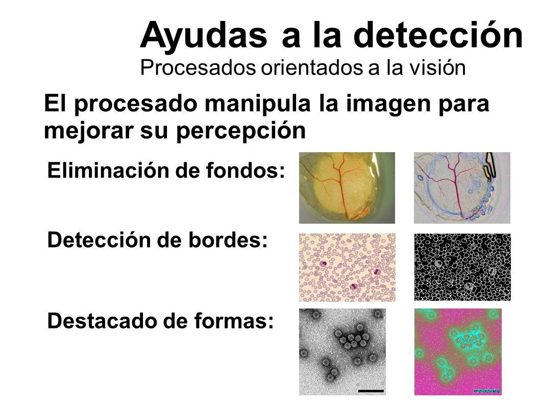 Ayudas a la detección Procesados orientados a la visión El procesado manipula la imagen para mejorar su percepción Eliminación de fondos: Detección de