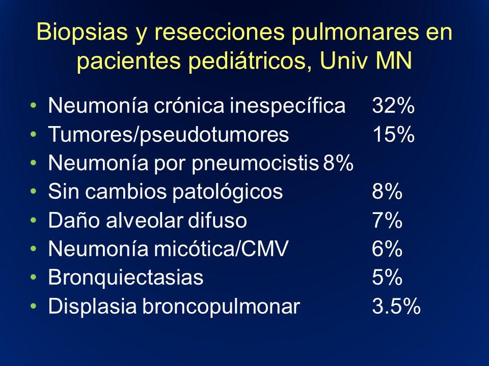 Biopsias y resecciones pulmonares en pacientes pediátricos, Univ MN Neumonía crónica inespecífica32% Tumores/pseudotumores15% Neumonía por pneumocisti