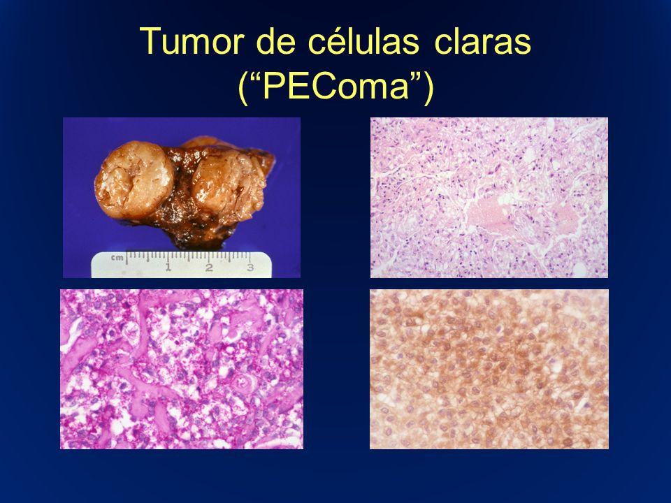 Tumor de células claras (PEComa)