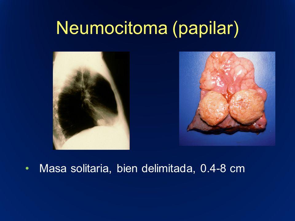 Neumocitoma (papilar) Masa solitaria, bien delimitada, 0.4-8 cm