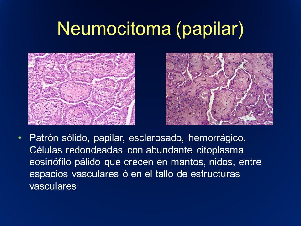 Neumocitoma (papilar) Patrón sólido, papilar, esclerosado, hemorrágico. Células redondeadas con abundante citoplasma eosinófilo pálido que crecen en m