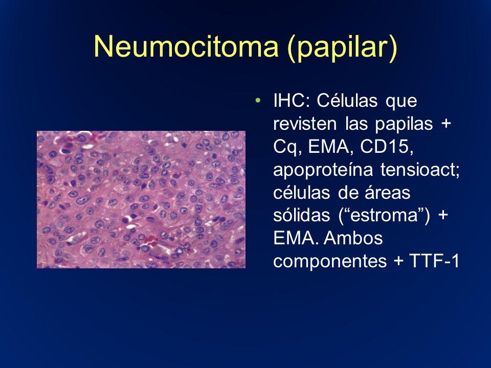 Neumocitoma (papilar) IHC: Células que revisten las papilas + Cq, EMA, CD15, apoproteína tensioact; células de áreas sólidas (estroma) + EMA. Ambos co