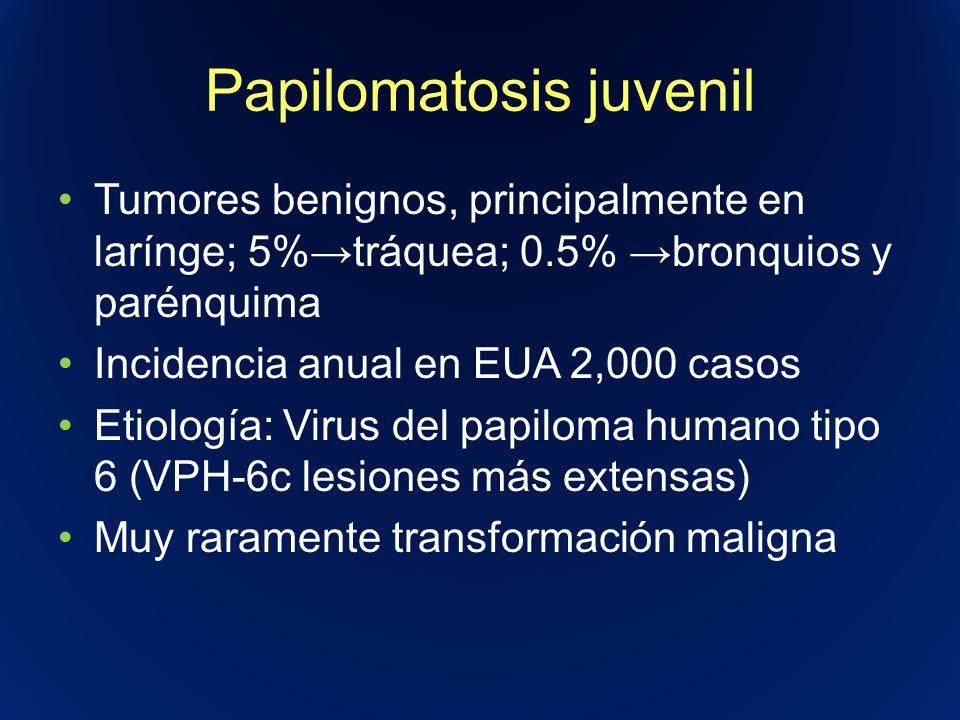 Papilomatosis juvenil Tumores benignos, principalmente en larínge; 5%tráquea; 0.5% bronquios y parénquima Incidencia anual en EUA 2,000 casos Etiologí