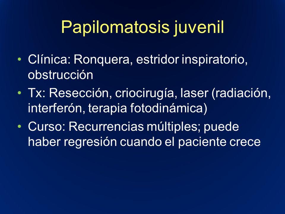 Papilomatosis juvenil Clínica: Ronquera, estridor inspiratorio, obstrucción Tx: Resección, criocirugía, laser (radiación, interferón, terapia fotodiná